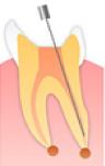 根管の細菌の除去